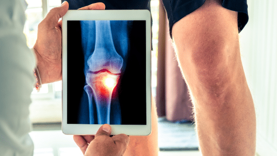 knee surgery vs injections